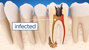 How Endodontics Is Performed