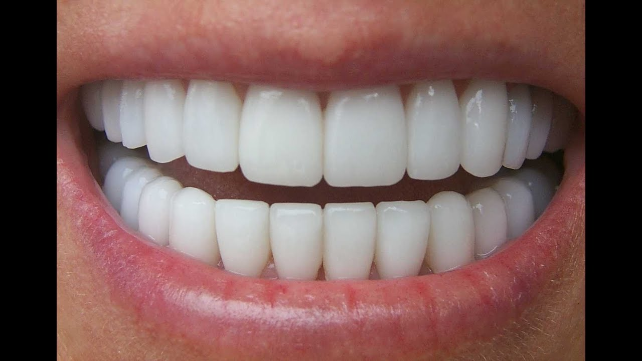 Tips for a Bright and Beautiful Smile